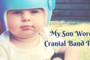 baby wearing cranial helmet Providence Moms Blog